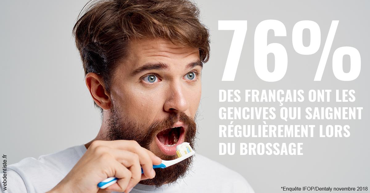 https://www.philippe-aknin-chirurgiens-dentistes.fr/76% des Français 2