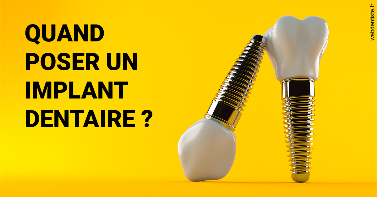 https://www.philippe-aknin-chirurgiens-dentistes.fr/Les implants 2