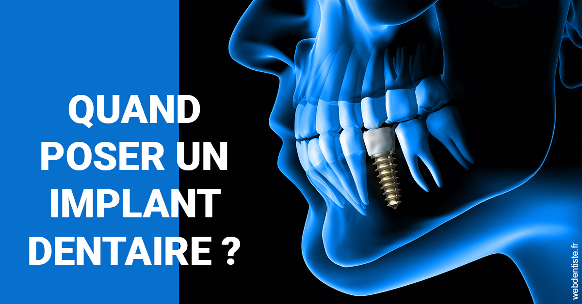 https://www.philippe-aknin-chirurgiens-dentistes.fr/Les implants 1